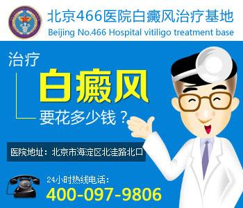 南京那家医院看白癜风好